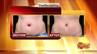 Removing Fat without Surgery or Downtime - Video