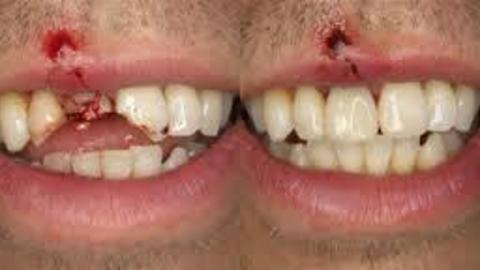Teenager Find's Brother's Tooth Stuck Inside Fist After Punching Him