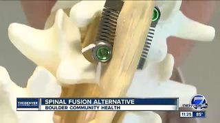 Spinal Fusion Alternative