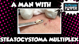 Dr Pimple Popper: A Man with Steatocystoma Multiplex: Session 1 - Video