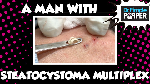 Dr Pimple Popper: A Man with Steatocystoma Multiplex: Session 1