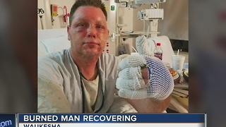 Waukesha man severely burned after grease fire - Video