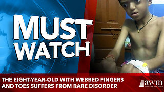The eight-year-old with webbed fingers and toes suffers from rare disorder - Video