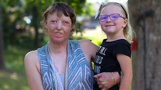 Burns Survivor Mom Rebuilds Her Life - Video