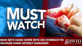 Man gets hand sewn into his stomach to salvage hand - Video