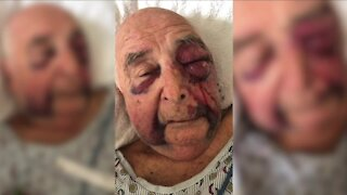 'The good Lord took care of me', 85-year-old Canton man grateful for surviving brutal attack