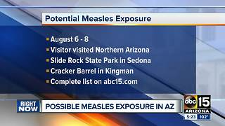 Potential measles exposure reported in northern Arizona