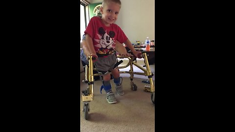Five-Year-Old Boy With Spina Bifida Learns How To Walk