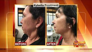 Cosmetic Treatments to Feel Confident on the Big Day - Video