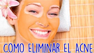 Como Eliminar El Acne - Video