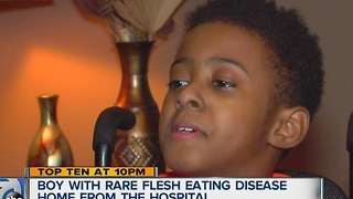 Detroit boy diagnosed with flesh-eating disease back home after amputation, months in the hospital - Video