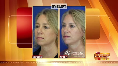 Clear Up Droopy Eyelids for a More Youthful Appearance