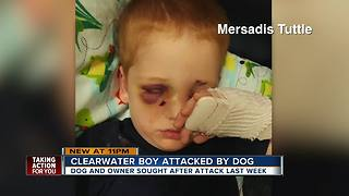 Child, 3, in ICU after dog attack in Clearwater