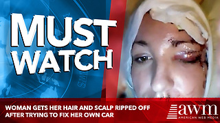 Woman Gets Her Hair And Scalp Ripped Off After Trying To Fix Her Own Car - Video