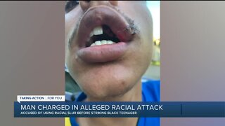 Man charged in alleged racial attack