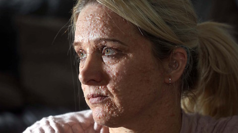 Neurofibromatosis Leaves Mum's Body Covered In Lumps: BORN DIFFERENT