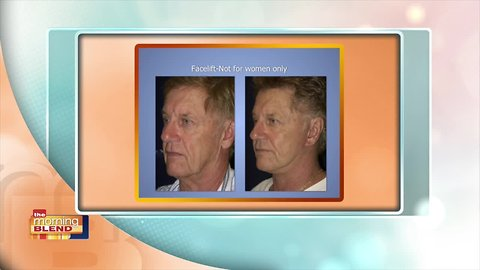 Doing A Facelift With Perfection From Dr. Stampar At Swan Centers