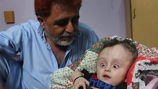 Pakistani boy, whom doctors say would not survive after his head swelled up to the size of football, has miraculous recovery - Video