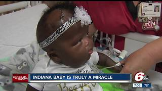 Premature miracle baby released from Riley Children's Hospital - Video