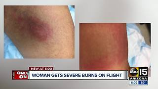 Woman says she was severely burned on a Southwest Airlines flight from Phoenix - Video