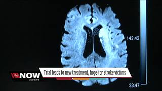 Groundbreaking DAWN study findings change treatment, giving hope for stroke victims - Video