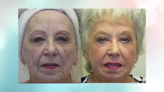 Get ready to look decades younger with Renuvion from Advanced Image Med Spa