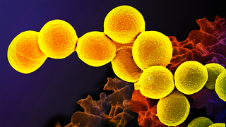 Microbes in your body can control how you feel and what you want to eat, here's how.