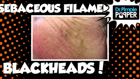Two Women with Blackheads and Sebaceous Filaments