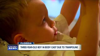 Three-year-old boy in body cast after trampoline-related injury - Video