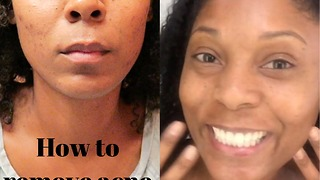 How to remove acne scars with microneedling - Video