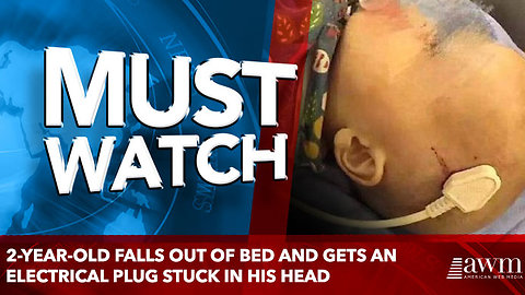 2-Year-Old Falls Out Of Bed And Gets An Electrical Plug Stuck In His Head