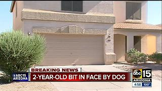 Two-year-old expected to be OK after dog bit in San Tan Valley - Video