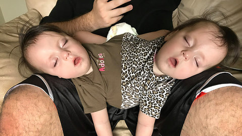 Conjoined Twins Are Perfectly Healthy And Have Bubbly Personalities