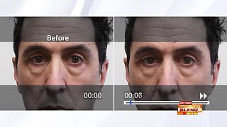 Get Rid Of Under Eye Bags...Instantly!