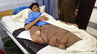 Teenager with 44lbs tumour covering his thigh and hip awaits life-changing surgery