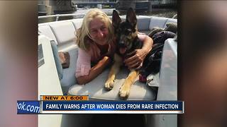 Wisconsin woman dies after dog lick - Video