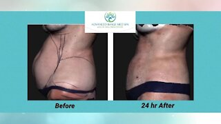 Advanced Image Med Spa and Elite Wellness Center: Lose fat and shrink inches FAST