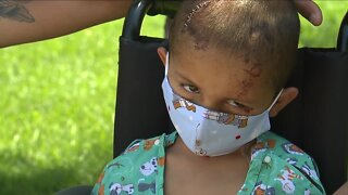 Aurora 4-year-old, victim of a hit-and-run, faces months of recovery