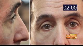 Plexaderm reduces the signs of aging