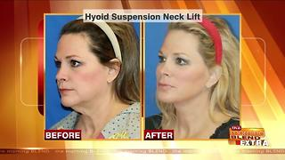 Blend Extra: Reversing the Signs of an Aging Neck