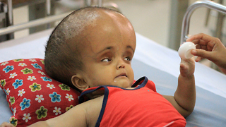 Baby With Swollen Head Hopes For Life-Saving Surgery: BORN DIFFERENT - Video