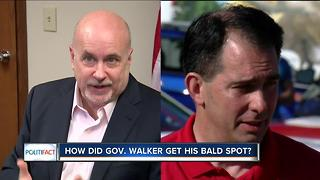 PolitiFact WI: How did Walker get his bald spot? - Video