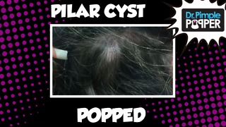 Popping a GREAT Pilar Cyst - Video