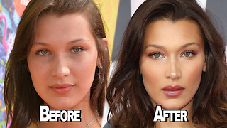 Bella Hadid OPENS UP About Having Plastic Surgery! - Video