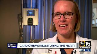Cardiomems helping Valley patients to monitor their heart