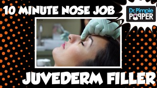 10 Minute Nose Job - Juvederm Filler - Video