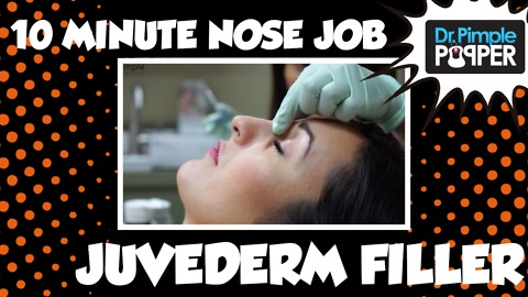 10 Minute Nose Job - Juvederm Filler