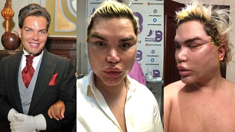 New year, new face! Rodrigo Alves warns others about spider web procedures after 200 threads and fibrosis removed during facial revision surgeries