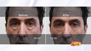 Get Rid Of Under Eye Bags Today!