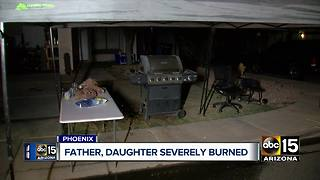Girl and father severely burned in Phoenix - Video